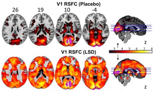 Visual cortex connectivity under LSD and placebo (Beckley Foundation)