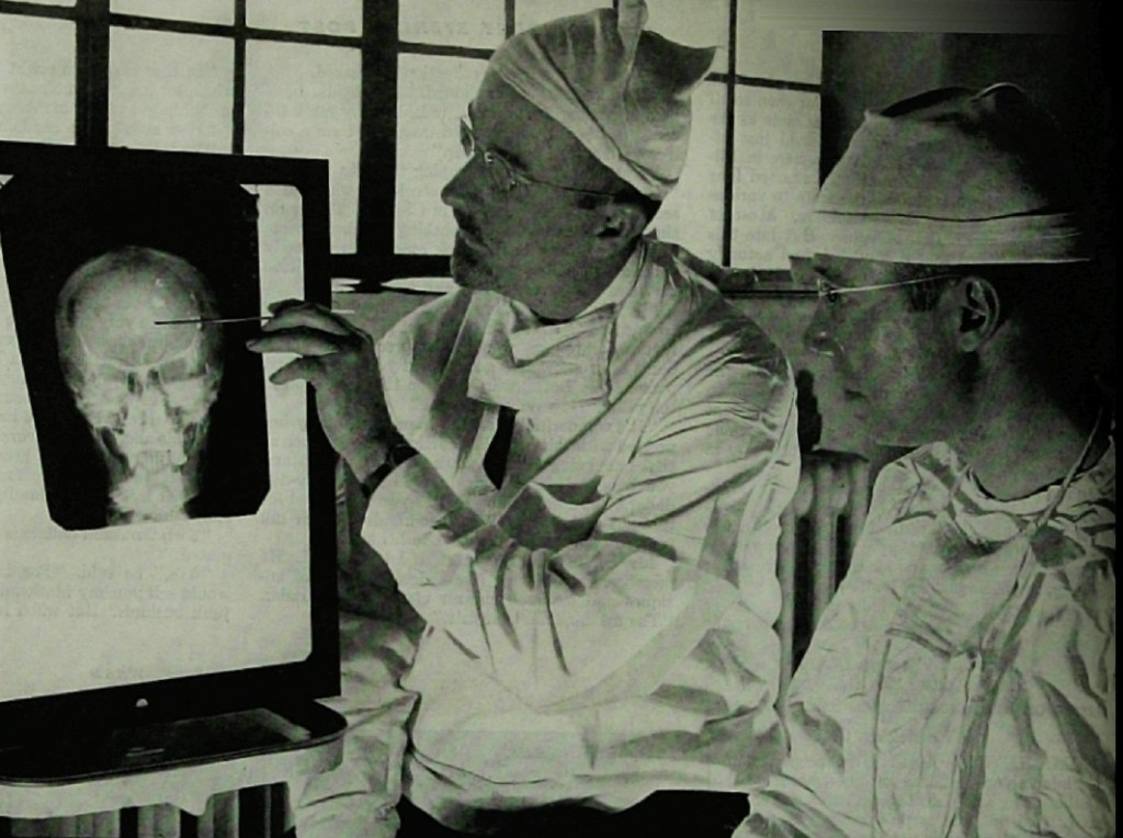 A lot has changed since psychosurgery and electroconvulsive therapy were the only treatment options (Wikimedia Commons)